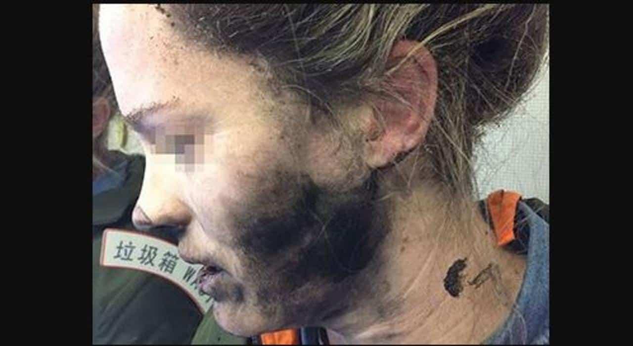 La photo de la jeune femme brûlée.