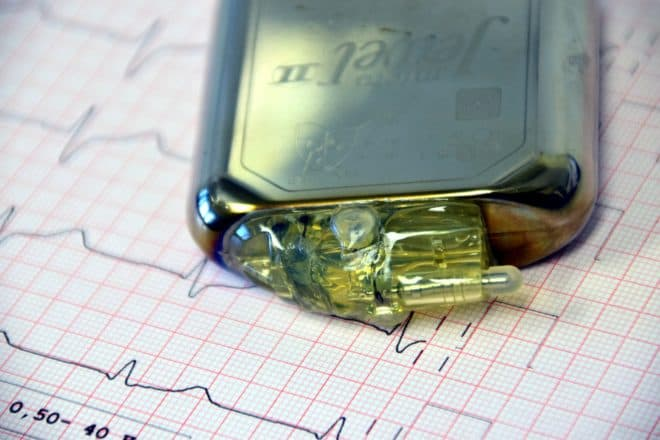 Photo d'illustration. Un stimulateur cardiaque.